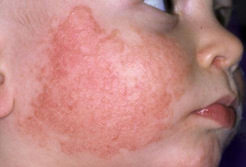 Мировые светилы медицины обсудили проблему атопического дерматита