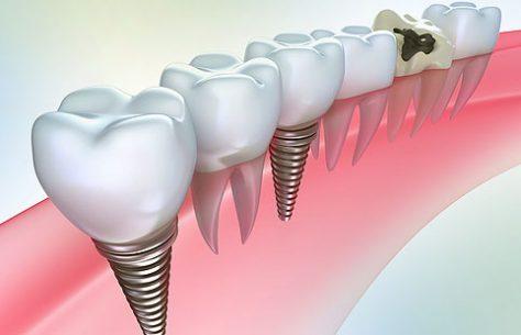 Протезирование зубов. Преимущества и недостатки металлокерамических коронок