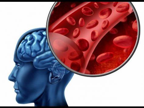 Инсульт: симптомы и лечение