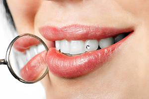 Этапы эстетической реставрации зуба
