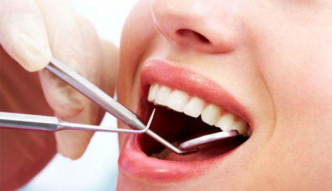 Стоматологическое заболевание-кариес