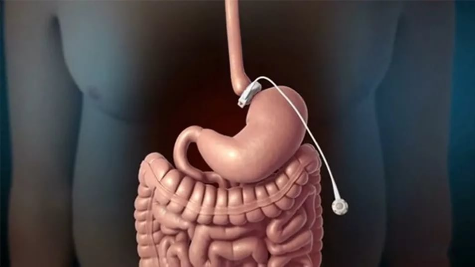 После шунтирования желудка кости подростков становятся более хрупкими
