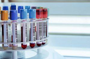 Пуповинная кровь поможет в лечении аутизма у детей