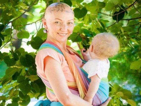 Волгоградка лишилась волос, бровей и ресниц во время беременности