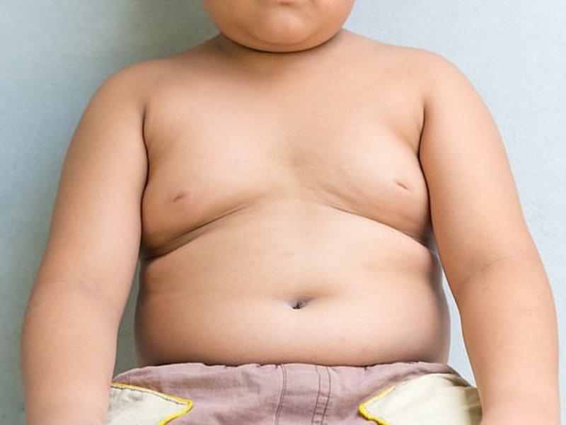 Дети матерей-одиночек чаще страдают от ожирения