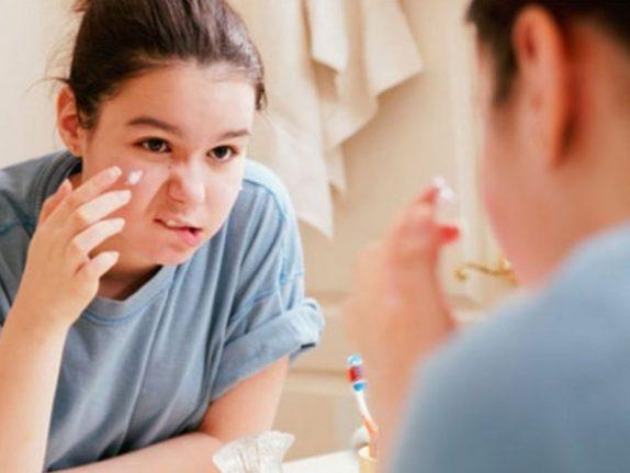Исследование: подростки с акне в будущем чаще добиваются успеха