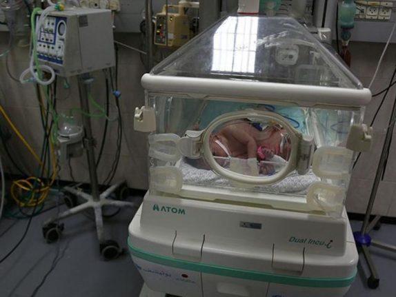 В Индии родились сиамские близнецы с одним сердцем на двоих