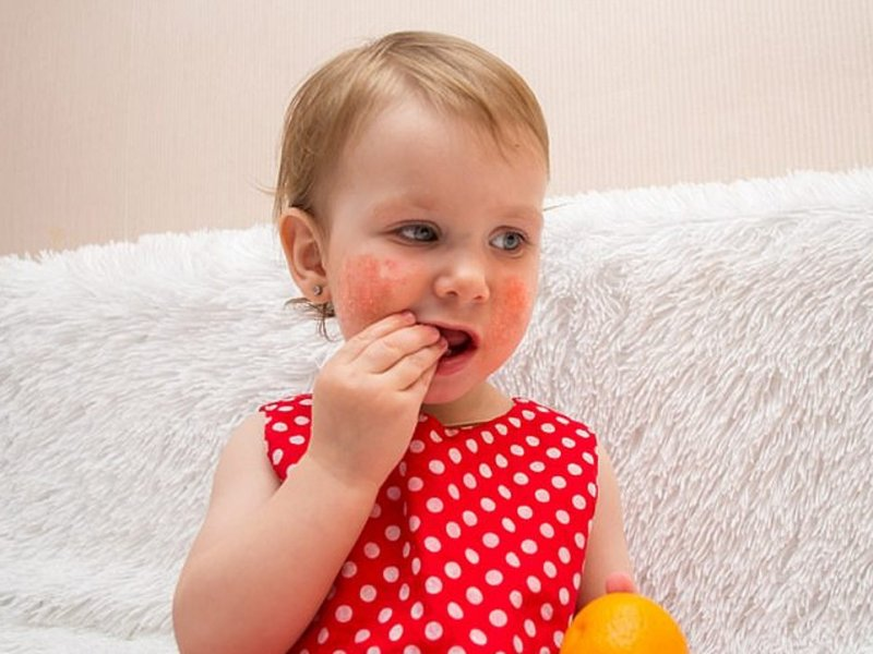 Крупные дети чаще страдают от аллергий и экземы