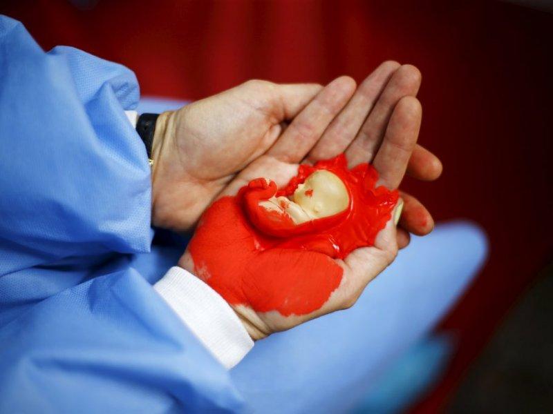 Названы опасные последствия аборта
