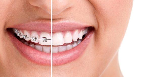 «SWANCLINIC»: современная эстетическая стоматология для каждого