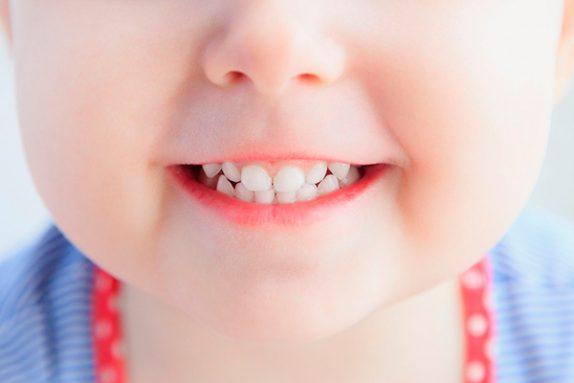 Для малышей: только зубные пасты без фтора