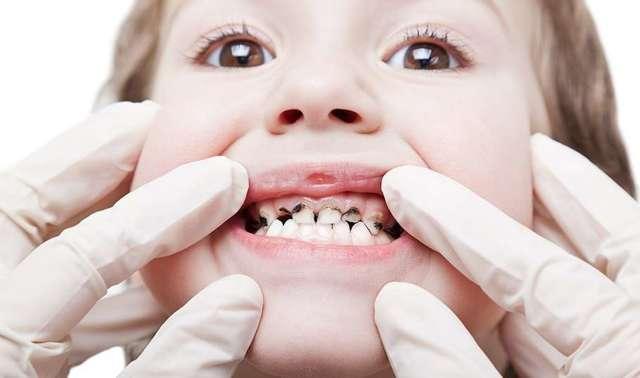 Стоит посетить стоматолога еще до появления у ребенка зубов