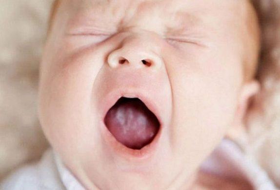 Белый налет во рту ребенка: что это такое и чем опасно