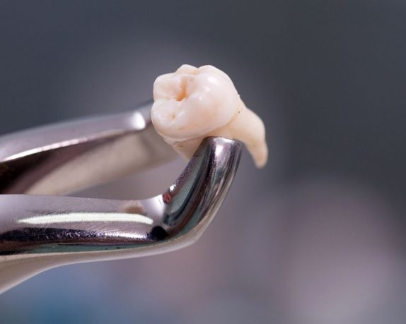 Удаления зубов на Автозаводской