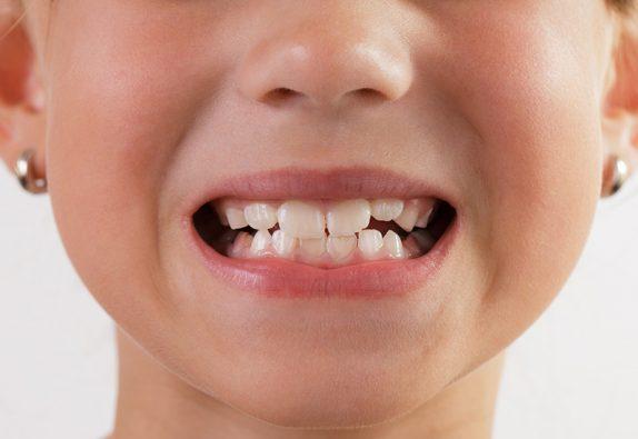 Проблемы с зубами у детей