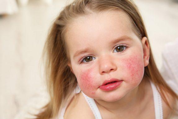 Важные советы по уходу за кожей при атопическом дерматите