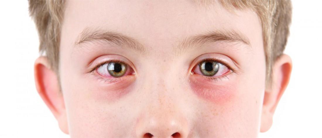 Если у ребенка красные глаза