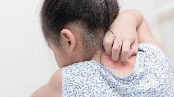 Экзема у детей может спровоцировать депрессию и замкнутость