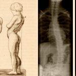 5 фактов о болезни Дюшенна, которые должны знать родители мальчиков