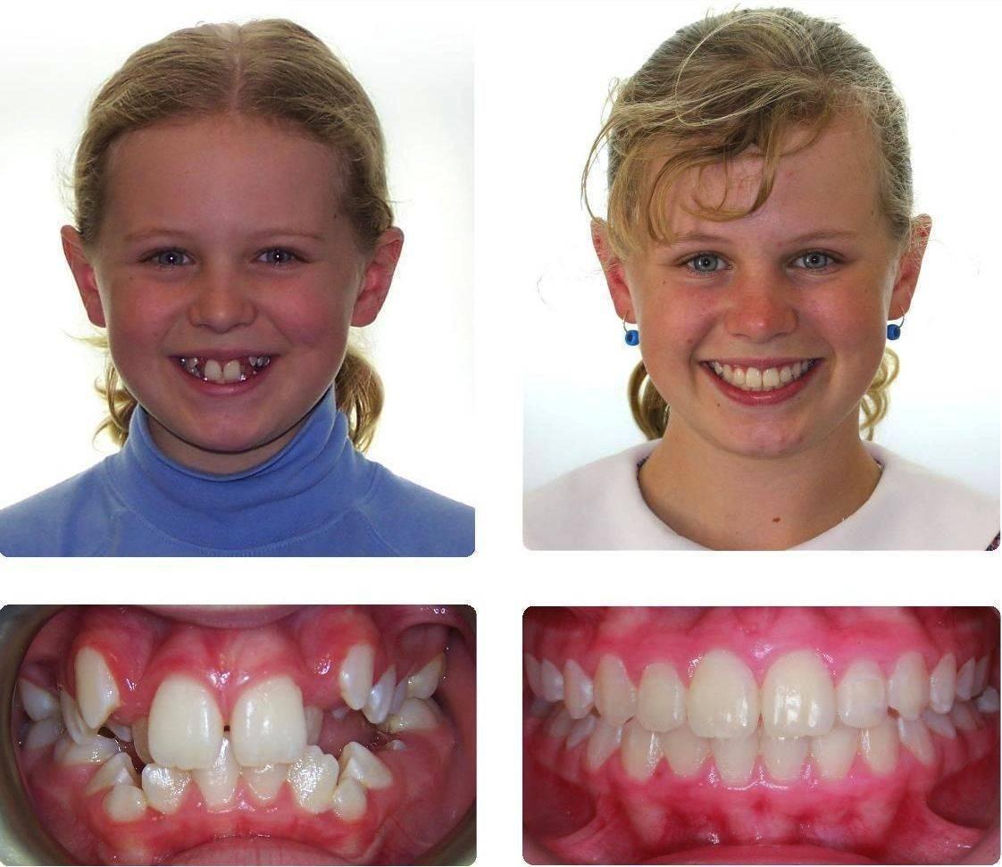Процедура выравнивания зубов
